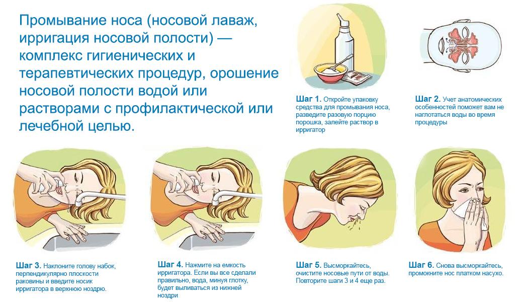 Промывание носа соленой водой: как приготовить солевой 60